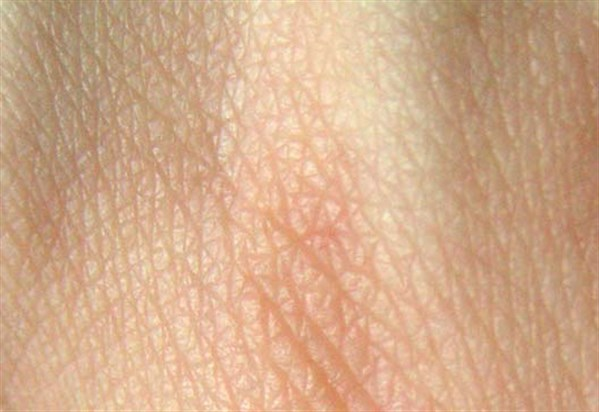 Human _skin _structure